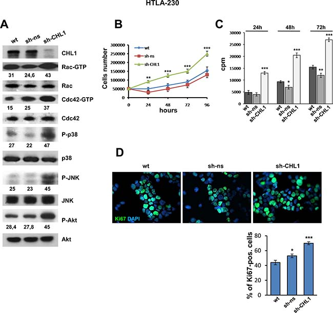 Down-regulation of CHL1 expression enhances growth of NB cells.
