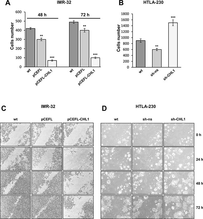 CHL1 expression influences NB cells migration and invasion.