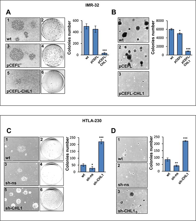 CHL1 expression affects colony formation and anchorage independent growth of NB cells.
