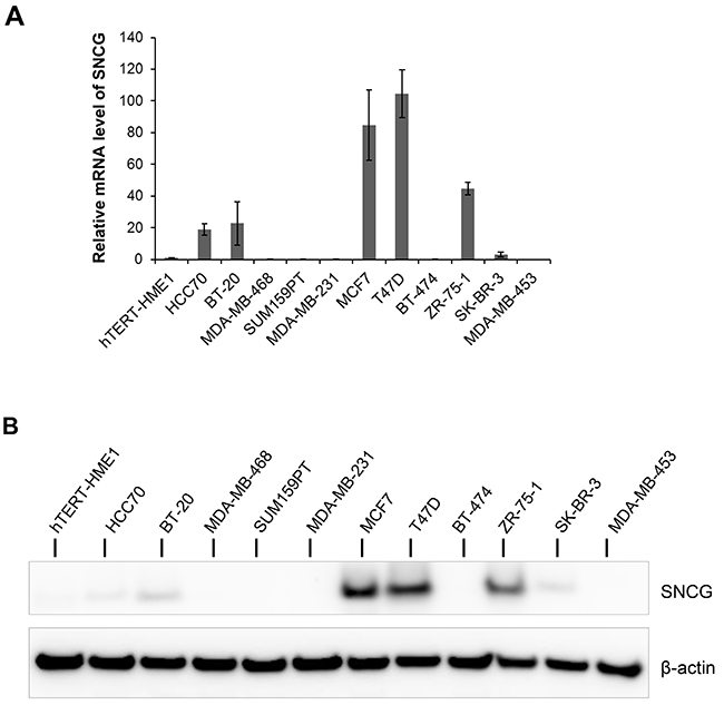 Expression of SNCG in breast cancer cell lines.