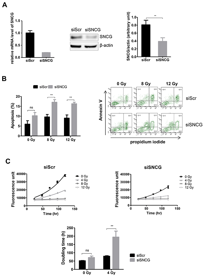 Inhibition of SNCG expression increases T47D cell radiosensitivity.
