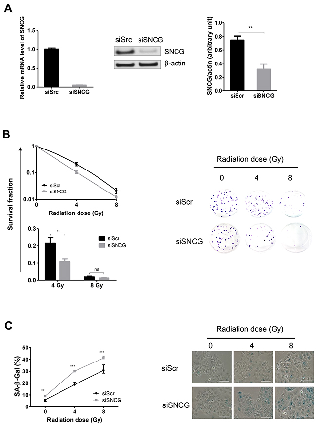 Inhibition of SNCG expression increases MCF7 cell radiosensitivity.