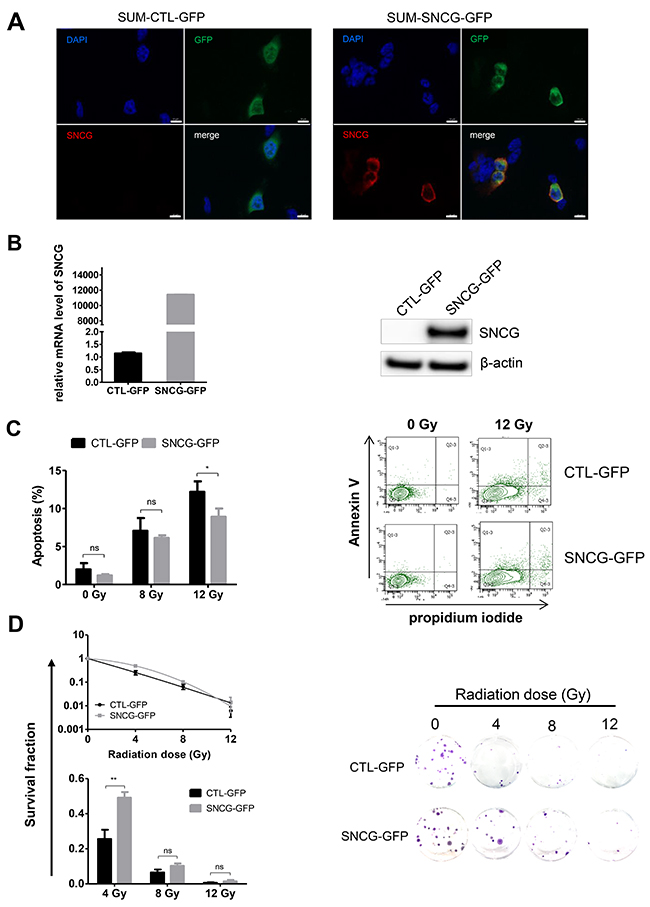 Ectopic expression of SNCG in SUM159PT cells increases their resistance to ionizing radiation.