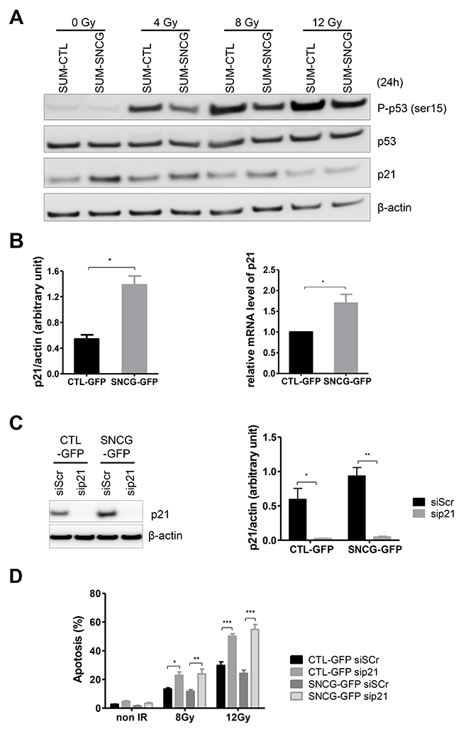SNCG expression attenuates p53 pathway activation and increases p21Waf1/Cip1 expression in SUM159PT cells.