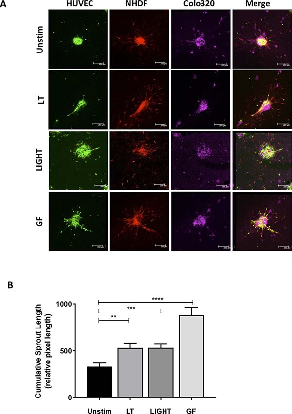 Activation of the non-canonical pathway induces angiogenesis in the 3D tumor-stroma model.