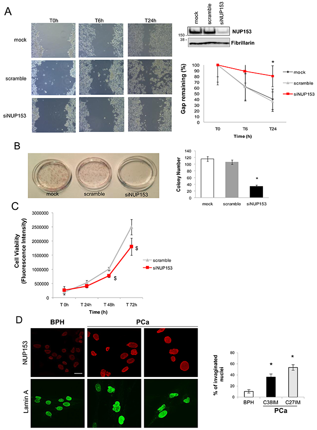 Nup153 depletion in PCa cells regulates migration and colony formation.