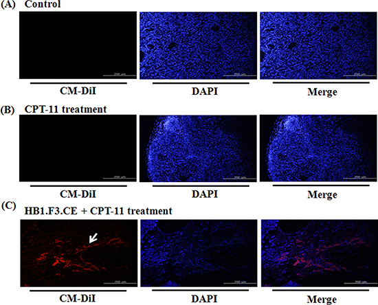 The migratory ability of human neural stem cells in tumor burden.