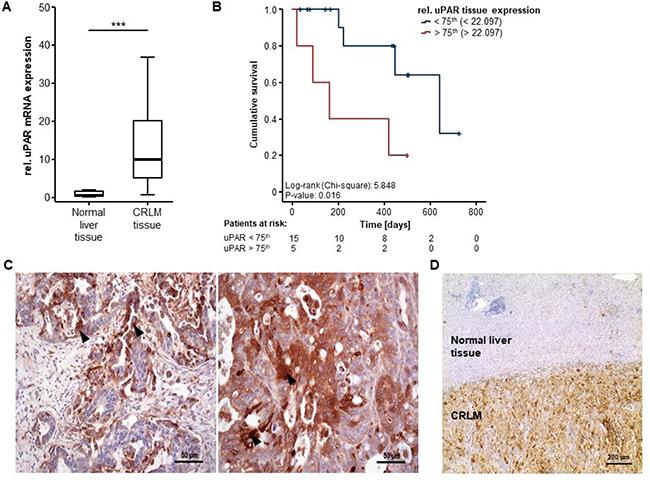 uPAR is overexpressed in colorectal liver metastases.