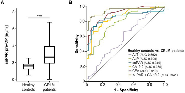 SuPAR serum levels are elevated in patients with colorectal liver metastasis.