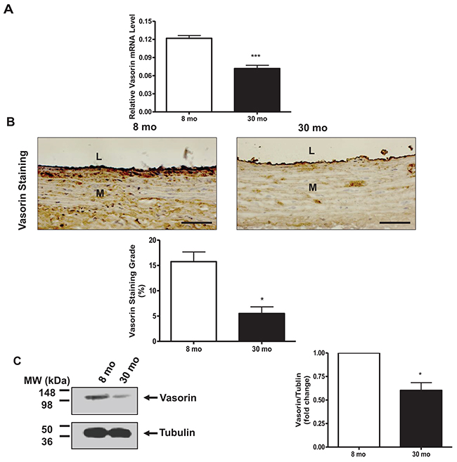 Vasorin expression decreases in arterial walls with aging.