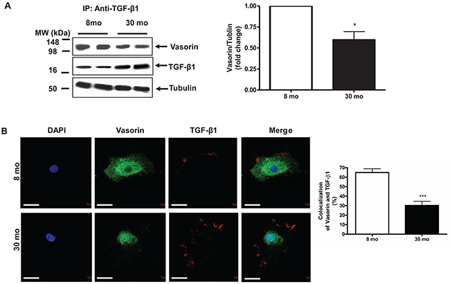 The Interaction of vasorin and TGF-β1 in VSMCs with aging.