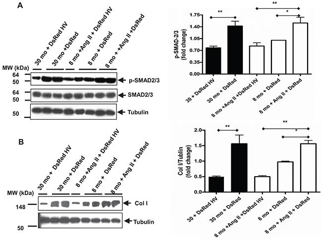 Age increases TGF-β1 downstream profibrotic molecules in VSMCs mediated by over-expressing vasorin.