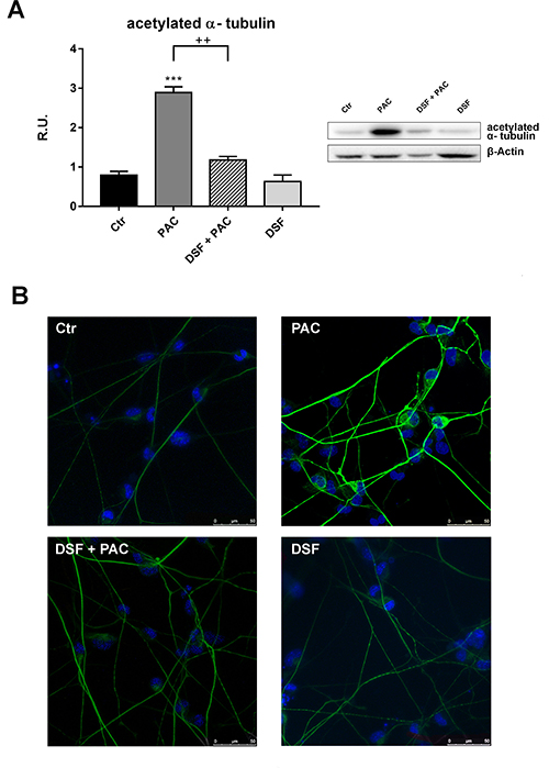 Western blotting for acetylated α-tubulin in control and treated cells.