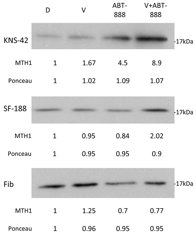 Combined treatment of vorinostat and ABT-888 increases cellular level of MTH1 in glioblastoma cells: Cells were treated with 0.5 μM vorinostat (V), 10 μM ABT-888 or both.