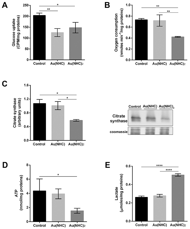 Influence of gold carbene complexes on cancer A2780 cell metabolism.