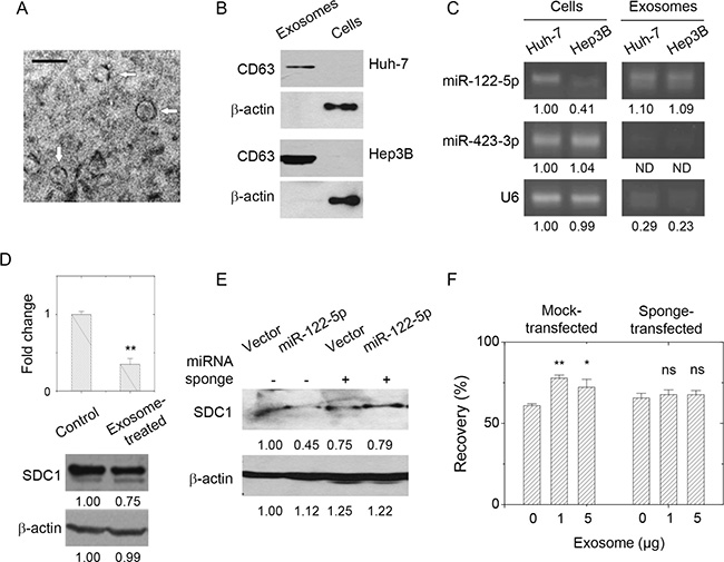 Presence of miR-122-5p in hepatoma-derived exosome affected breast cancer cell mobility through SDC1 down-regulation.