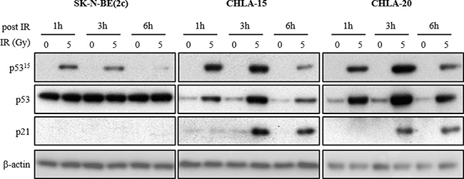 The effect of X-irradiation on p53 signalling in SK-N-BE(2c), CHLA-15 and CHLA-20 cells.