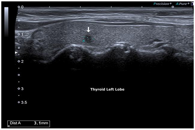Hypoecogenic micro-focus, irregular margins.