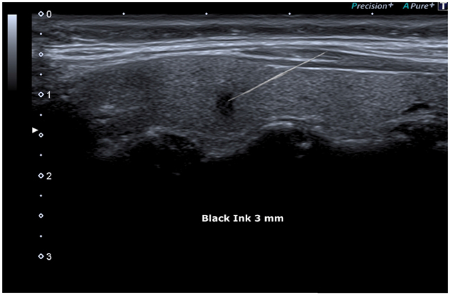 FNAC (Fine Needle Aspiration Cytology) Showed under guide.