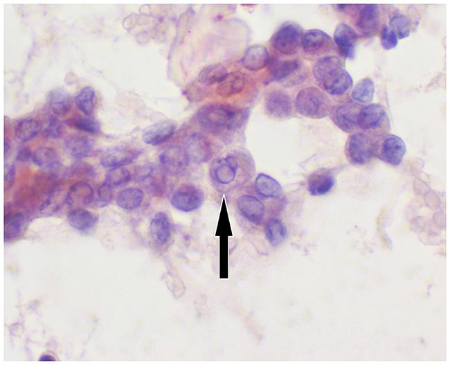 Zoom Cytology image.