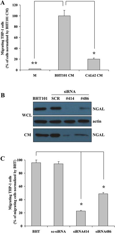In vitro NGAL-mediated leukocytes recruitment.