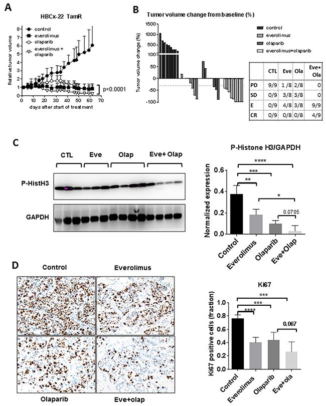 Anti-tumour activity of everolimus and olaparib in a BRCA2-mutated ER+ breast cancer.