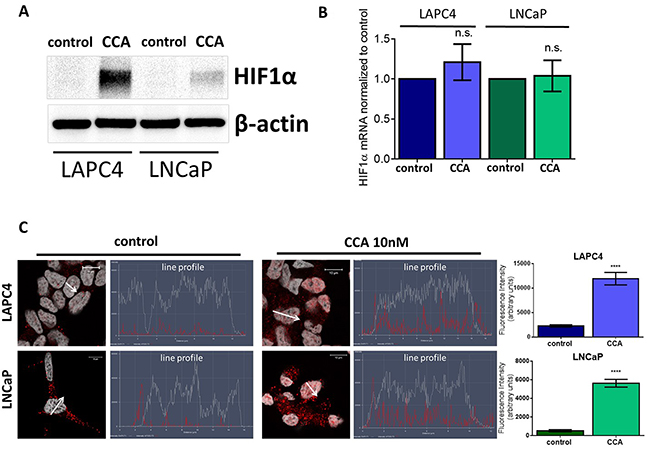 V-ATPase inhibition increases HIF1α protein levels and nuclear localization in prostate cancer cell lines.