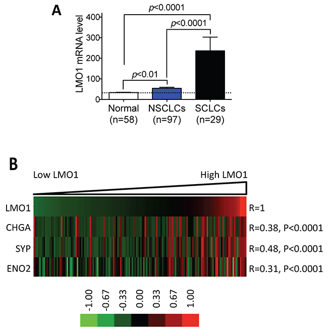 LMO1 mRNA levels are significantly correlated with expression of neuroendocrine markers in lung cancer cell lines.