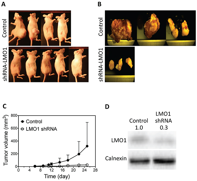 LMO1 knockdown inhibits tumor growth in mouse lung tumor xenografts.