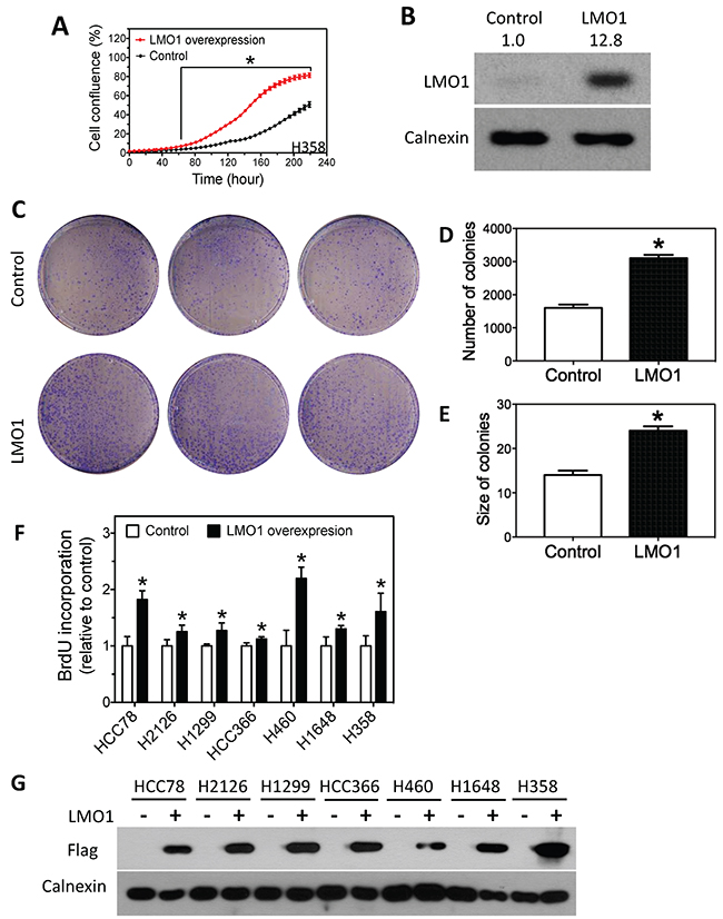 Over-expression of LMO1 promotes lung cancer cell proliferation.