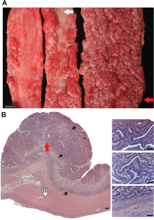 N14-77 represents a rare case of extreme intestinal polyposis in the dog.