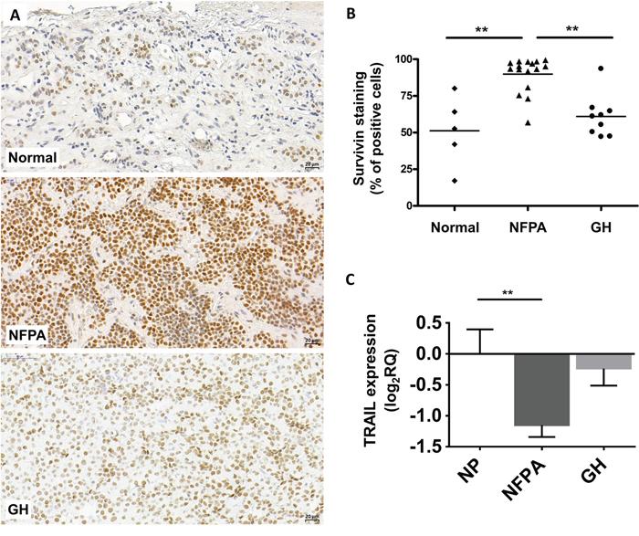 Representative images for survivin immunostaining on pituitary adenomas.