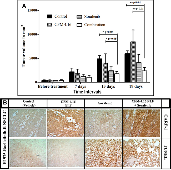 Nano-lipid formulation of CFM-4.16 in combination with Sorafenib inhibits growth of TKI-resistant NSCLC cell-derived xenografts.