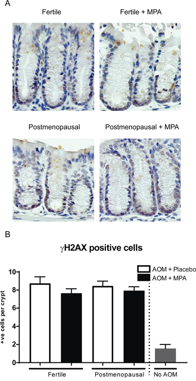 MPA treatment does not rescue increased DNA damage upon azomxymethane treatment shown by γ-H2AX staining.