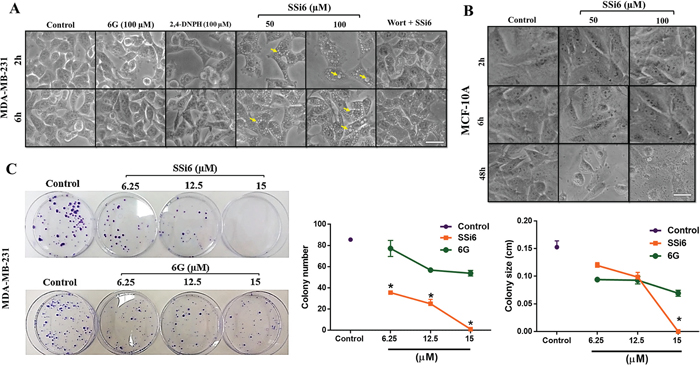 Effects of SSi6 and 6G on morphology and colony formation of triple negative breast cancer MDA-MB-231 cells.