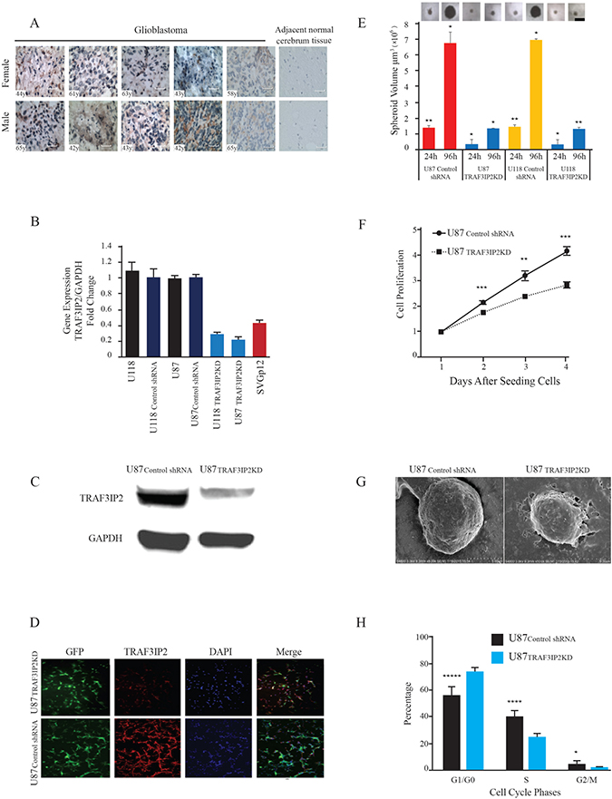 TRAF3IP2 expression in human glioblastoma tumor tissues and glioblastoma cell lines.