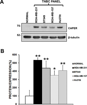 Endogenous CAPER levels in a panel of human tnbc cell lines.
