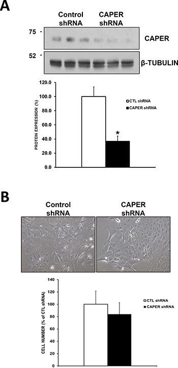 Knockdown of CAPER in a non-tumorigenic cell line MCF-10A does not affect their growth.