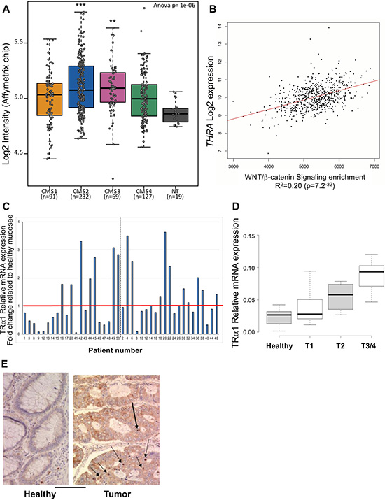 Correlation between TRα1 and Wnt in human colorectal cancer samples.