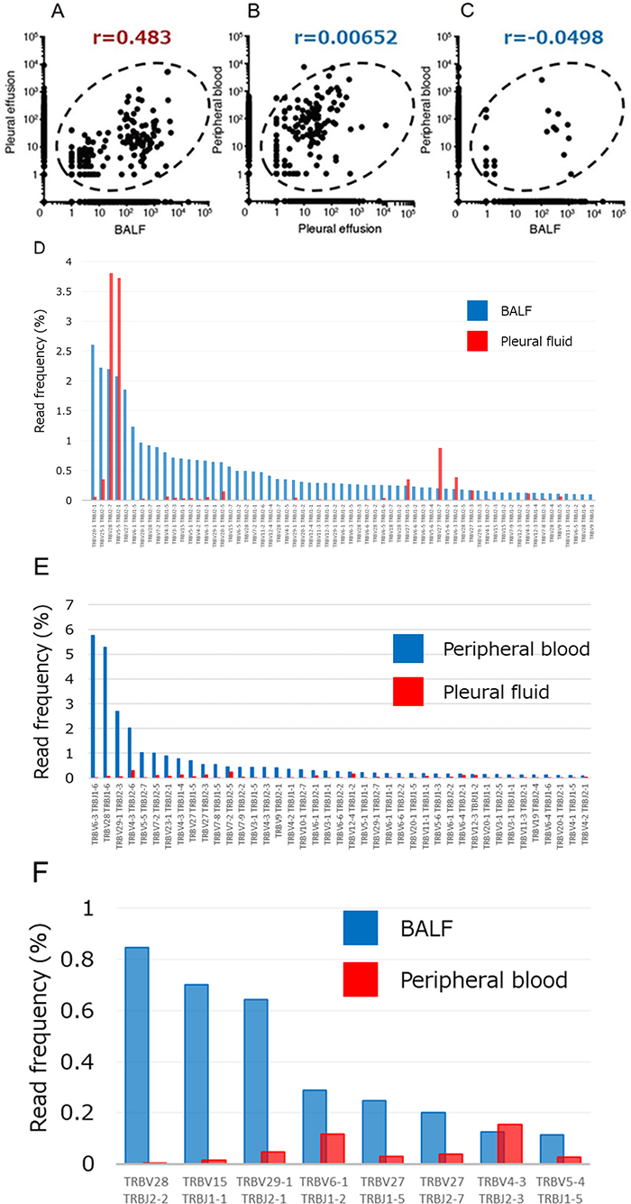 Relations among the numbers of TCRβ clones in pleural fluid, BALF, and peripheral blood of the patient.