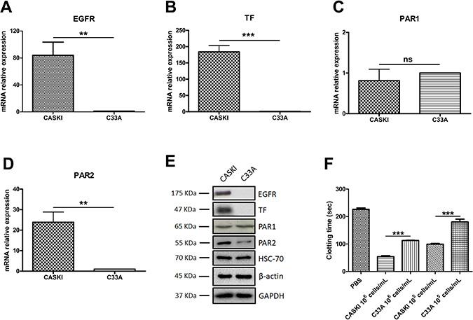 Expression of EGFR, TF, PAR1 and PAR2 in cervical cancer cell lines.