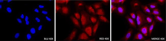 Immunofluorescence staining with KMT2C antibody in Saos-2 osteosarcoma cell line (40×).