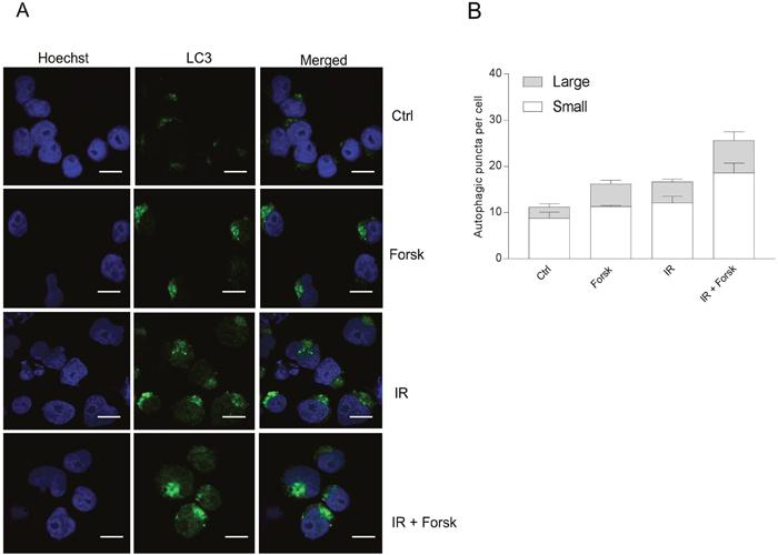 Immunocytochemistry of LC3-puncta.