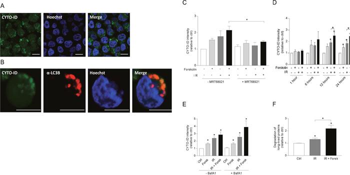 cAMP signaling enhances autophagic flux in REH cells.