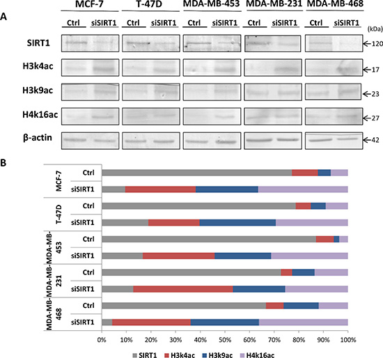 Control of SIRT1 gene silencing with SIRT1-siRNA and its impact on the expression patterns of targeted epi-marks H3k4ac, H3k9ac and H4k16ac in-vitro.