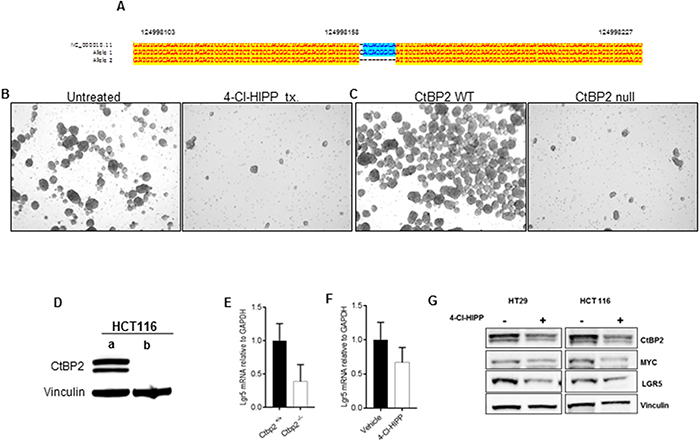 CtBP2 null human colon cancer cells have decreased TIC expression.