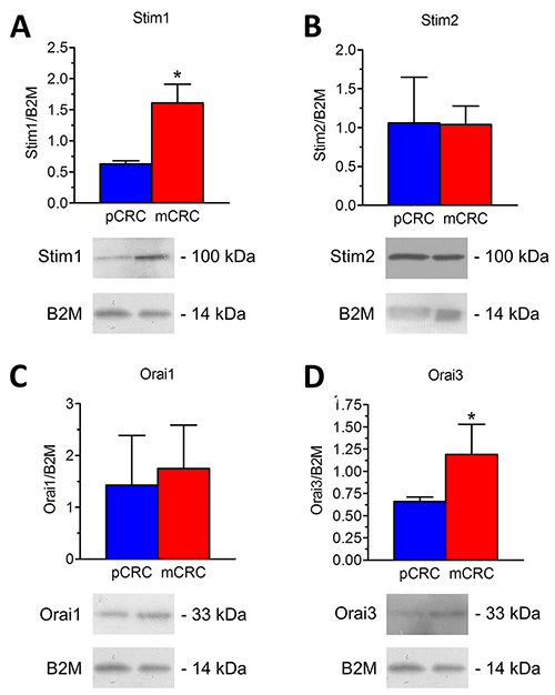 Expression of Stim1-2, Orai1 and Orai3 proteins in patients-derived colorectal cancer cells.