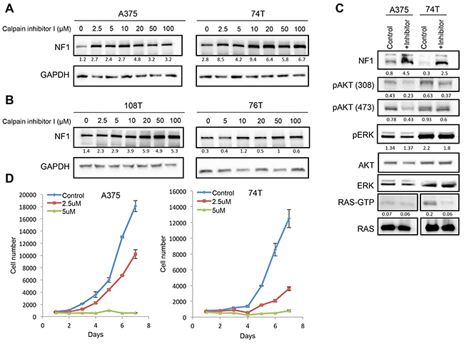 CAPN1 inhibition stabilizes NF1 levels, affecting RAS signaling and cell proliferation.