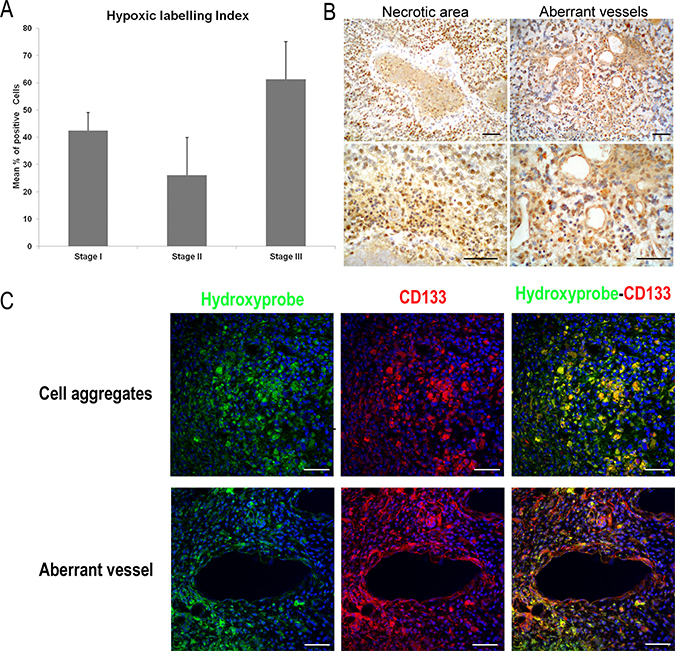 Detection of tissue hypoxia in ENU-glioma by Pimonidazole hydrochloride (Hydroxyprobe™-1 solution; Chemicon).