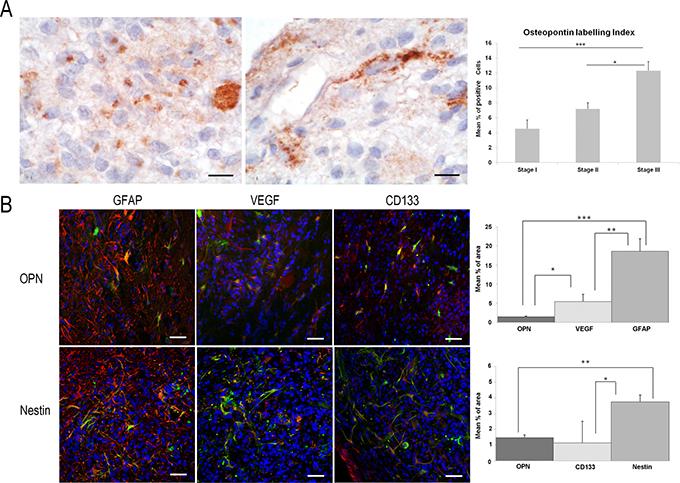 Study of OPN immunoexpression in ENU-glioma stages of development.